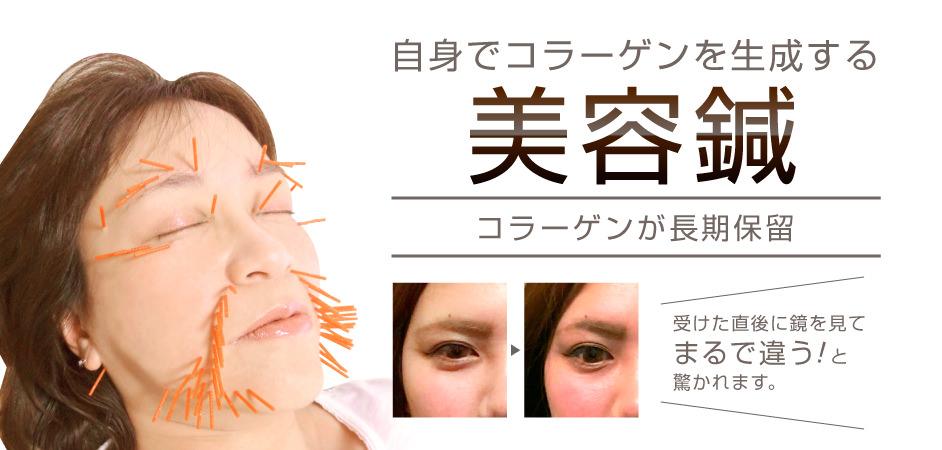 自身のコラーゲンを生成させる美容鍼。コラーゲンの長期保留が可能に。受けた直後に鏡を見てまるで違う!と驚かれます。